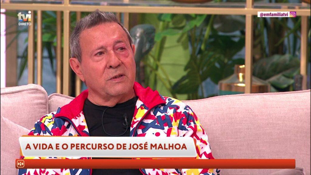 José Malhoa mostra quisto sebáceo no olho, em directo na TVI